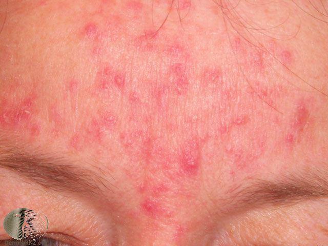 Rosacea Bumps (Subtype 2) – Enchanté